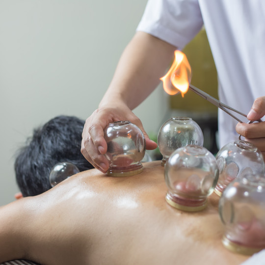 FIRE CUPPING