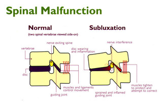 Are subluxations the cause of your aches, pains, and poor health?