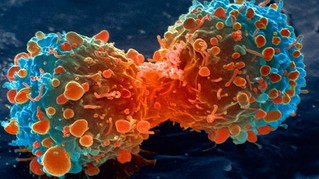 Starve cancer to death by removing this one thing from your diet