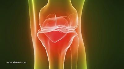 Arthroscopic-Knee-Arthritis-Pain-400x225.jpg