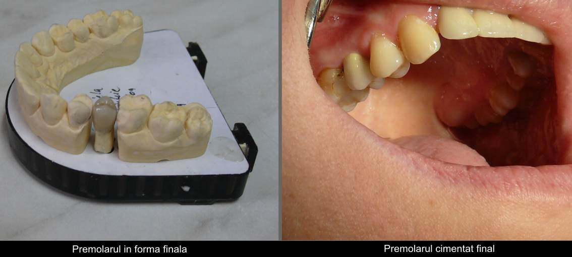 Cer. crown+Pivot on premolar, final