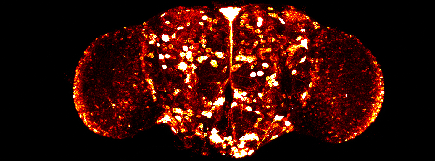Drosophila Brain Slice