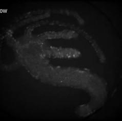 Hydra in microfluidic chamber
