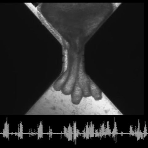 nanoSPEAR recording of Hydra