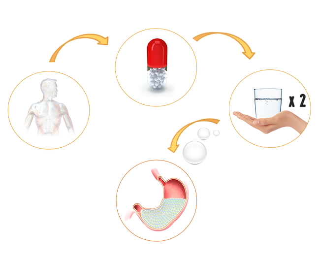 Mikroballoon, mikrobalon, yenilebilir mide baloncukları, Ayda Haftada İdeal Hızlı Kilo Verme, Zayıflama ve Diyet