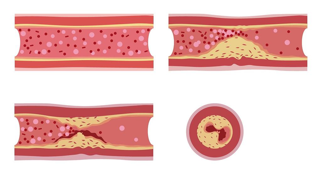 LDLコレステロール 動脈硬化 プラーク 心筋梗塞 脳梗塞
