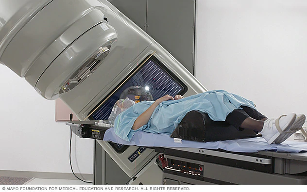 Preparing for Radiation: Questions to ask your doctor