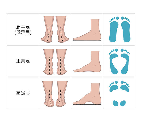 足弓圖-02.jpg