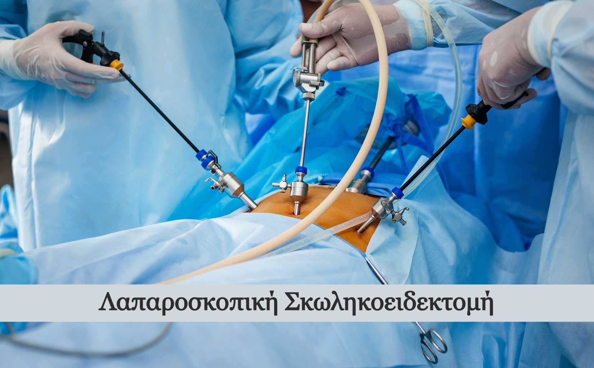laparoskopiki-skolikoeidektomi_edited