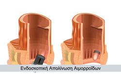 endoskopiki-apolinosi-aimorroidon-1_edit