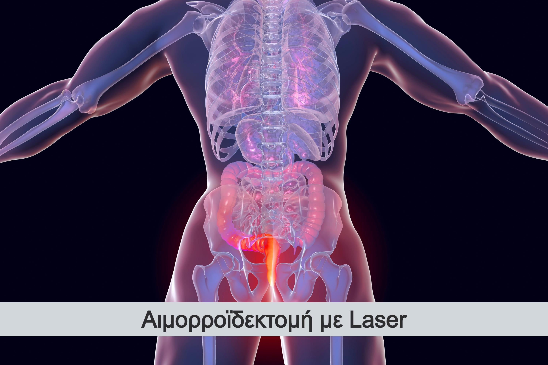 aimorroidektomi-me-laser-1_edited