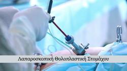 laparoskopiki-tholoplastiki-stomachou_ed