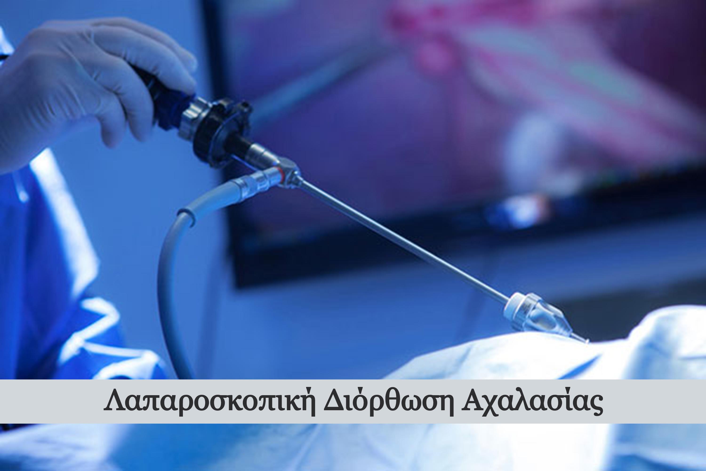 laparoskopiki-diorthosi-achalasias_edite
