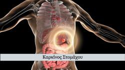 karkinos-stomachou_edited