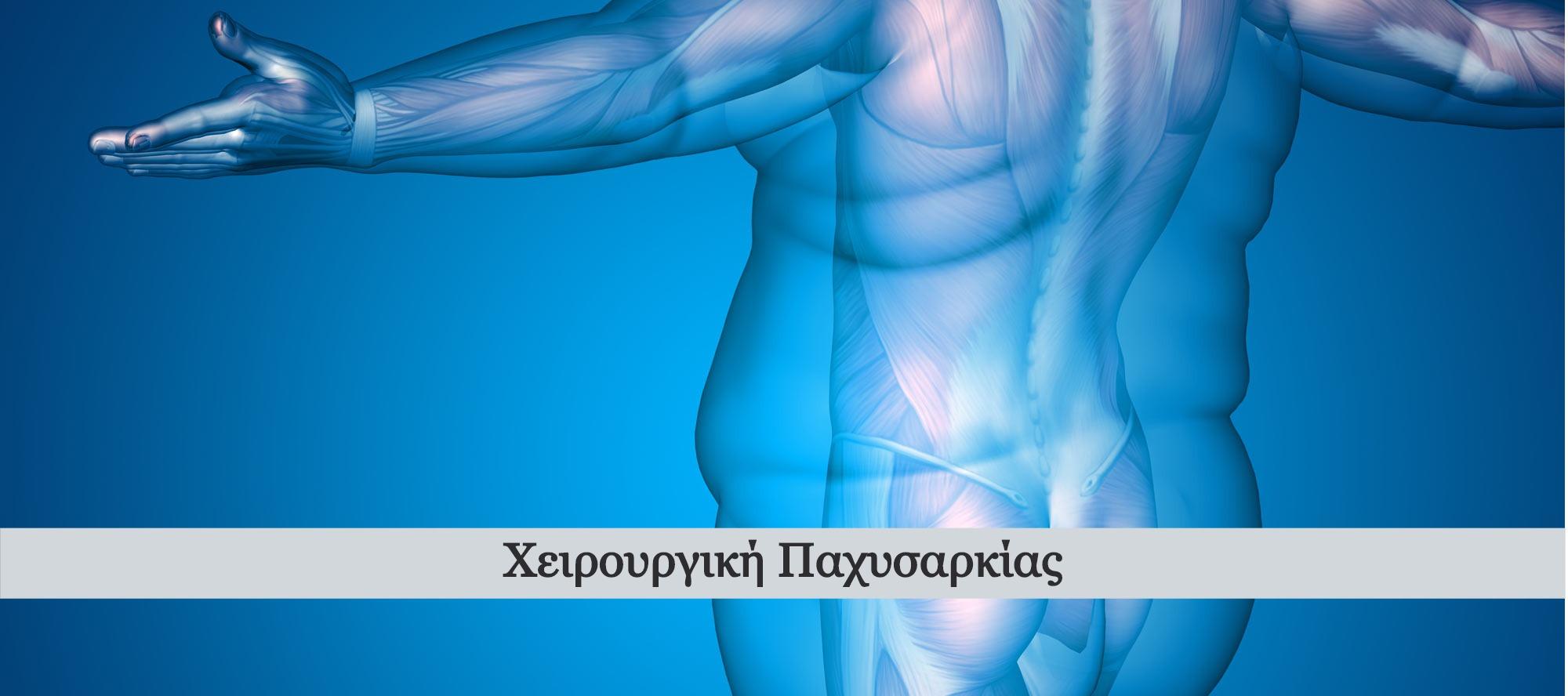 laparoskopikes-epemvaseis-pachysarkias_e