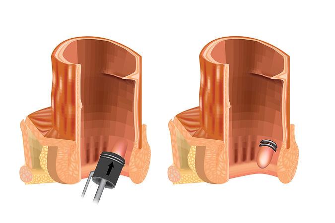 endoskopiki-apolinosi-aimorroidon-1.jpg