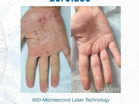 Treat Psoriasis without harsh chemicals!