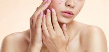 Different-Types-Of-Acne-And-How-To-Treat