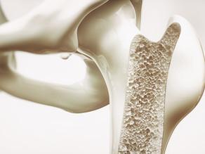 ExiGo syringe pump enhances 3D bioprinting for tissue regeneration and bone formation.