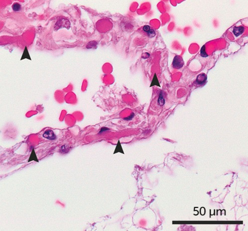 Microthrombi in the alveolar capillaries of a Lung tissue sample from a Patient who died from COVID-19.