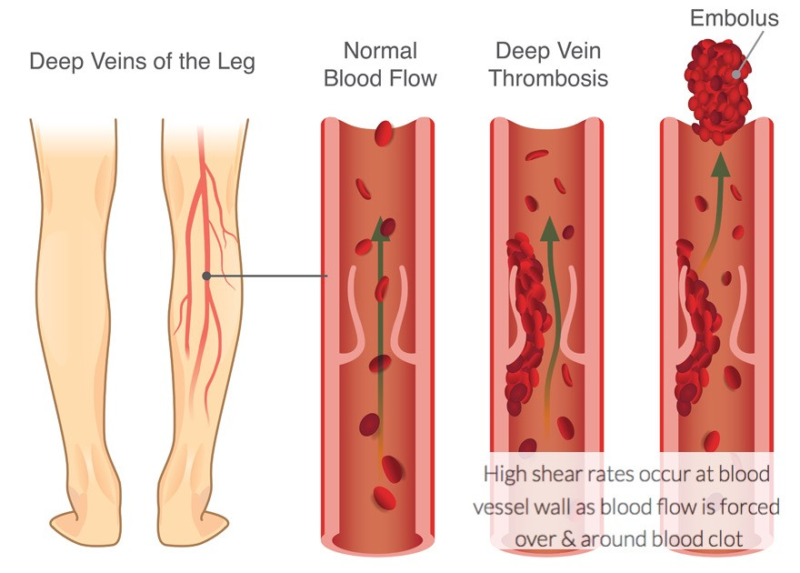 High shear rates occur as a thrombus grows:  blood flow is diverted over and around the blood clot