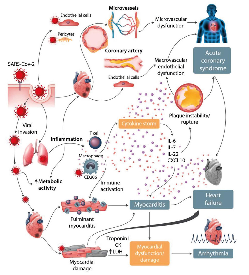 Cardiovascular involvement in COVID-19 - key manifestations and hypothetical mechanisms