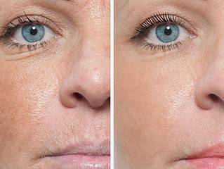 Have you heard about Micro Needling?