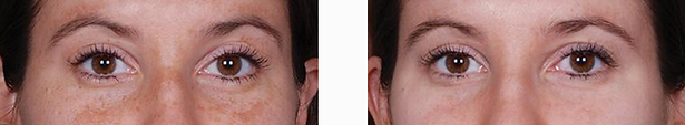 Before and After images of results achievable following 12 weeks use of the Obagi ELASTIderm Eye Cream, available from Allure Aesthetics Ltd skin care clinic in Abergavenny, South Wales