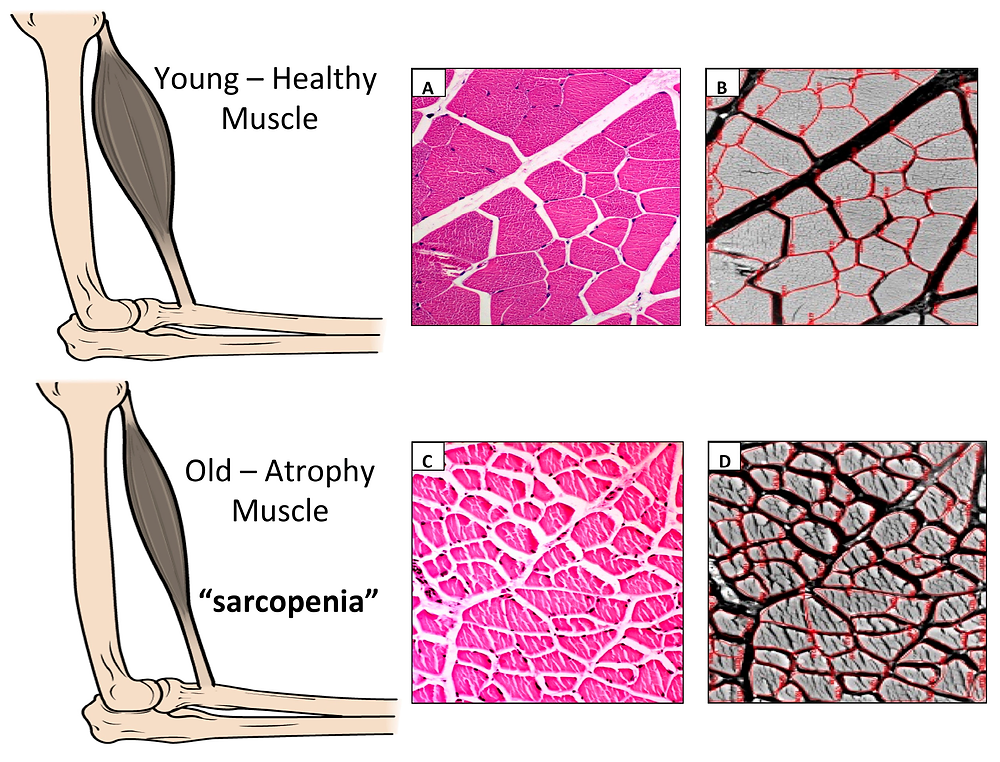 High Intensity Resistance Training Prevents Sarcopenia or Muscle Loss