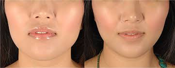 jaw slimming pic.jpg