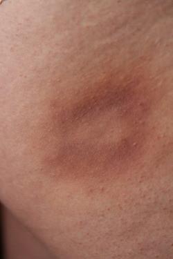 Bite Mark Bruise