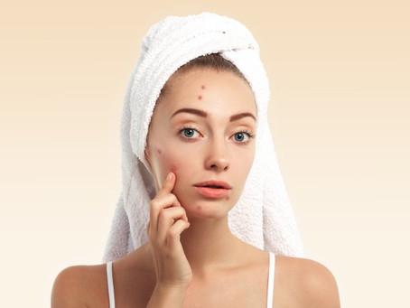 L'intemporelle acné...