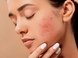 What is acne ? Home remedies to treat acne or acne vulgaris.