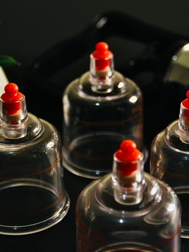 Benefits of Hijama or Cupping