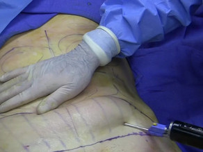 Liposuction Cost in India