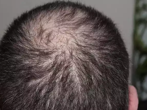 Creatine hair loss : Is there any relation between Creatine and hair loss ?