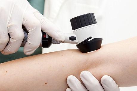 dermatoscopia-fabiana-errico-dermatologa