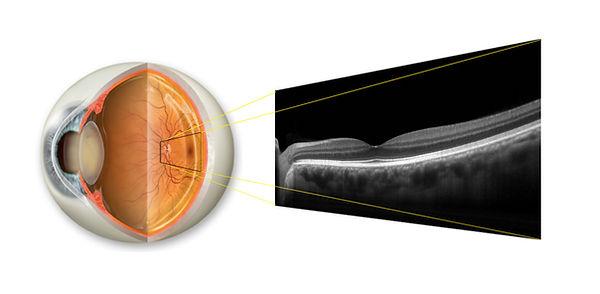 10_Retinal B-Scan.jpg