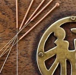 acupuncture photo (2).jpg