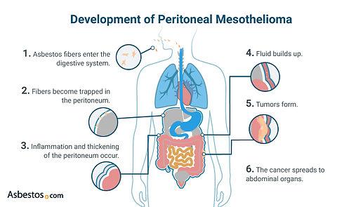 Development-of-Peritoneal-Mesothelioma.j