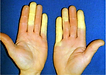 Hands-of-a-person-suffering-from-vibrati