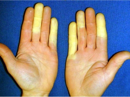 What is vibration white finger? -     (hand arm vibration syndrome)