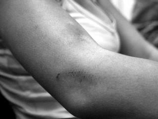Mulher sofre tentativa de estupro e é assaltada dentro de casa
