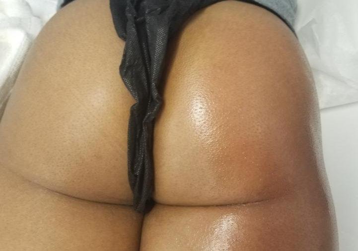 Non-Invasive  Butt Lift