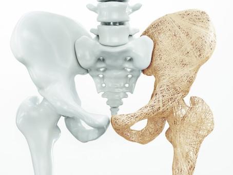 Menopausa: luta contra a osteoporose