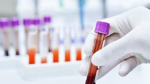 Alzheimer: novo exame de sangue pode detectar Alzheimer precocemente