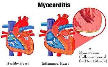 32.MYOCARDITIS2.jpg
