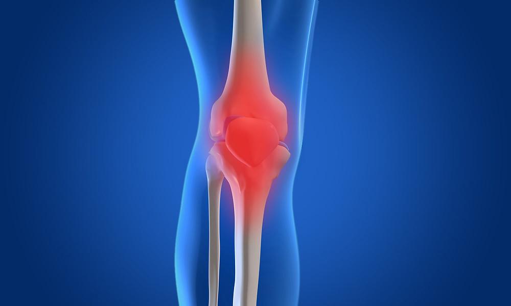osteoarthritis, physio