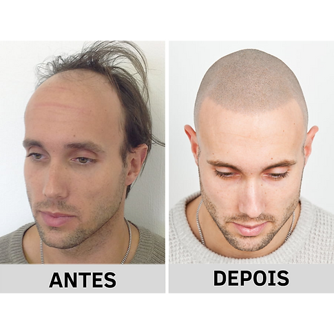 ANTES.png