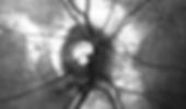 Glaukom_Patient_Augenarztzentrum_Zuerich